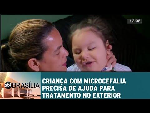 Criança com microcefalia precisa de ajuda para tratamento no exterior | SBT Brasília 02/08/2018