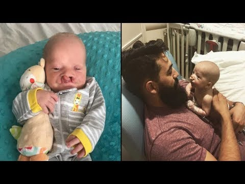 'Friend' Tells Dad They Should've Aborted Deformed Baby  Dad's Response Leaves Him Dumbstruck