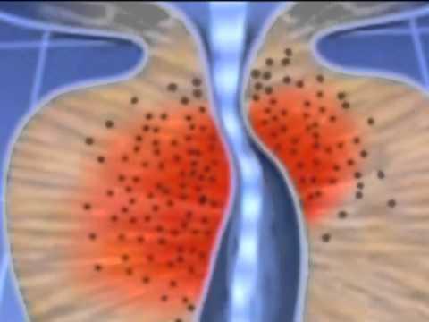 Диагностика простатита у мужчин: анализы, определение диагноза