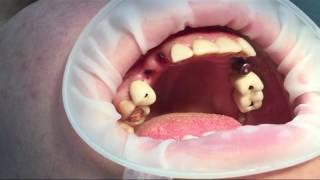 видео имплантация зубов до и после