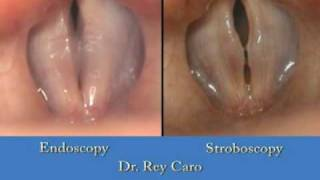 Endoscopy vs Stroboscopy (Dr. Rey Caro)