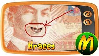 USAPANG PERA: Braces