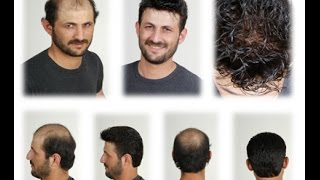 Are Bald Men Attractive ? Argan Life Hair Care Products