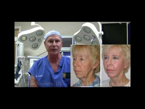 The Truth About Facelift Surgery Part 1 by Dr. Joe Niamtu, III
