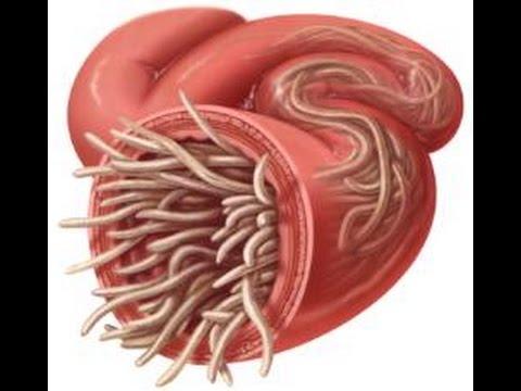 Resultado de imagen para parasitos intestinales