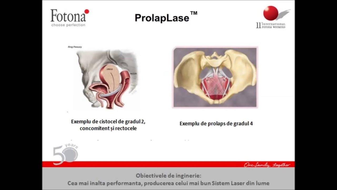 PROLAPS DE ORGANE PELVINE - MEDICAMENT -