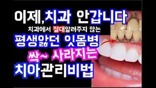치과는,알려주지않는 잇몸병 싹~ 사라지게 만든,양치법 …