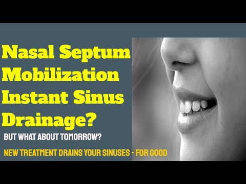 nasal-septum-mobilization-for-instant-sinus-drainage-new-treatment