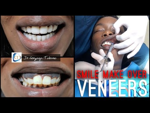 My Colombian SMILE MAKEOVER | Non Prep Veneers w/ Clinicas Matizz