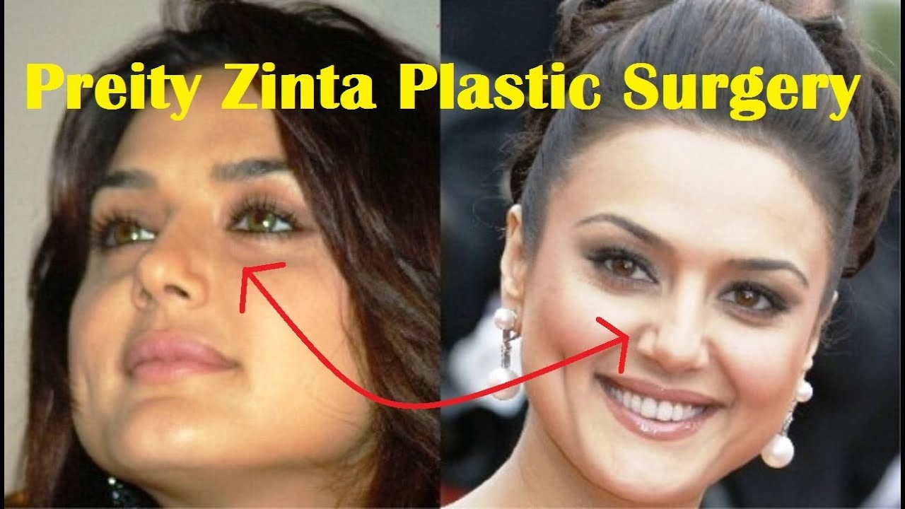 preity zinta plastic surgery before and after - youtube
