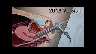 Women's Health - Pap SMEAR (PAP TEST) - Animation Procedure