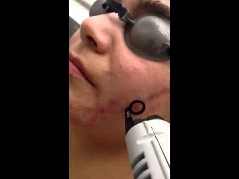 Remoción de Cicatrices con Láser Bogotá - Innova Laser Center