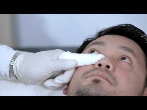 Proper Eye drop Instillation