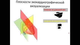 Ультразвуковая анатомия сердца