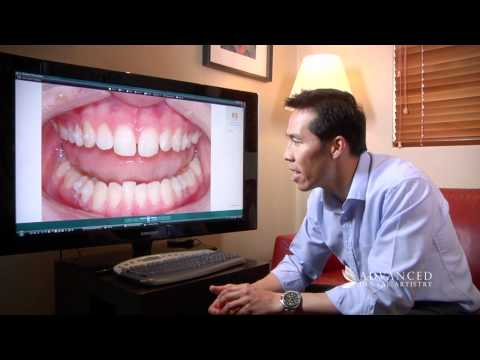 advanced-dental-artistry-----straightening-teeth-with-invisalign---cosmetic-and-dental-implant-team