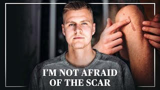 Kristaps Porzingis Opens Up About ACL Rehab
