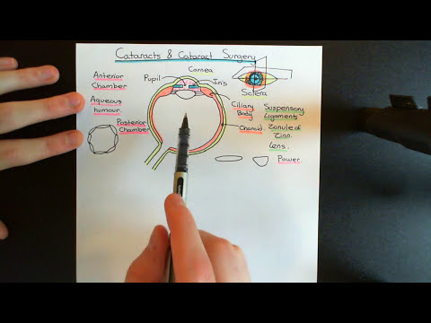 Cataracts and Cataract Surgery Part 1