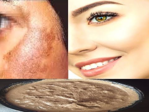 Miracle Pack, 1 ही यूज़ में चेहरे को बना देगा इतना गोरा, बेदाग़, Anti-Aging, Whitening Pack from YouTube · Duration:  8 minutes 21 seconds