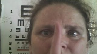 Eye Movement, Balance Impaired by Bad Chiropractor- Natural Eyesight Improvement Cures Vision. # 1