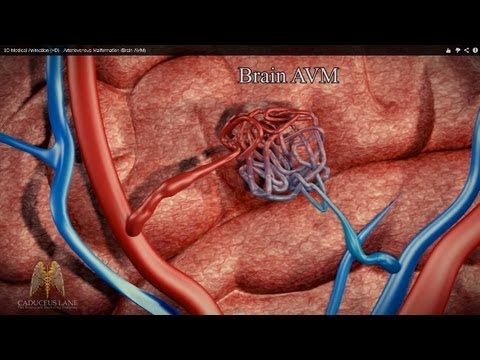 3D Medical Animation (HD) - Arteriovenous Malformation (Brain AVM)