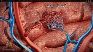 3D Medical Animation (HD) - Arteriovenous Malformation (Brain AVM)