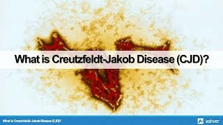 What is Creutzfeldt Jakob Disease (CJD)?