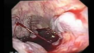 Endoscopia: Caso de Sangrado agudo por Varice del Esófago