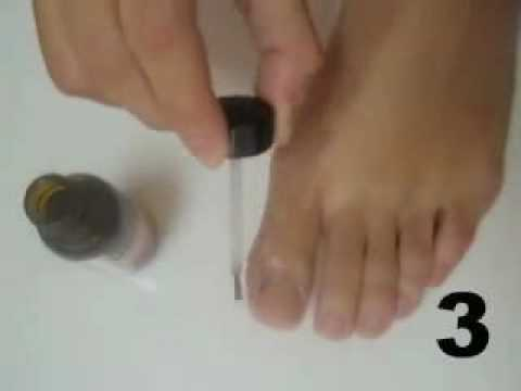 Nail Toe Fungus :  How To Get Rid Of Nail Fungus