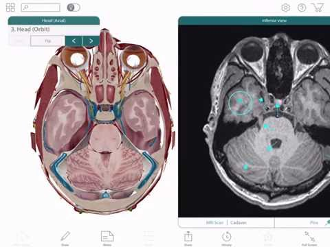 Human Anatomy Atlas 2017 Edition For Ipad Android Tablet