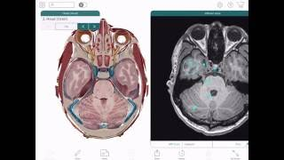 Human Anatomy Atlas 2017 Edition for iPad & Android Tablet - Overview