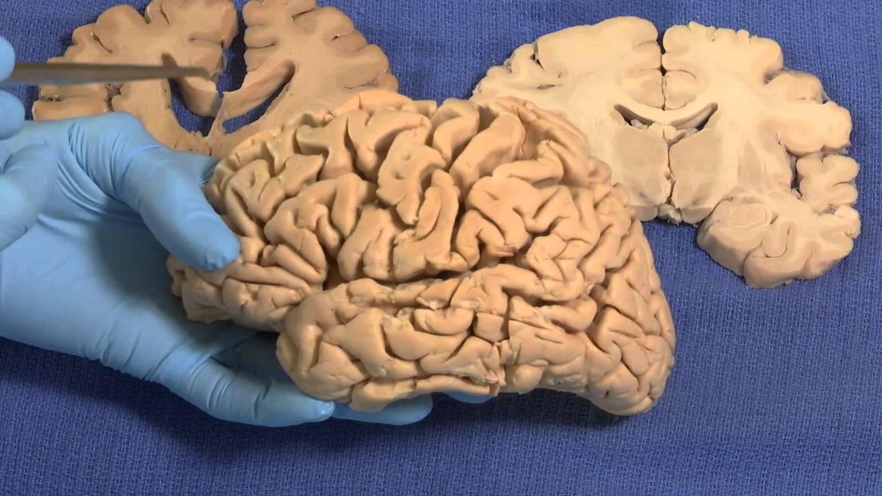 Neuroanatomy Video Lab: Brain Dissections