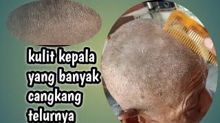Di video kali ini saya membuat konten tentang kutu rambut dan bahaya kutu rambut yang bisa menyebabk.