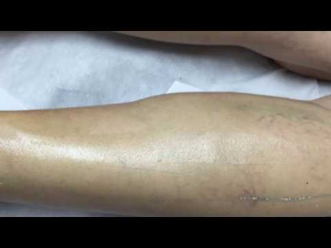 Thinnest Strip Wax Application Using Bareskin Tiffany Wax!