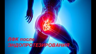 ЛФК после эндопротезирования тазобедренного сустава.