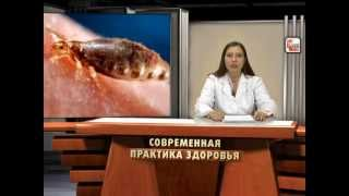 видео Цитомегаловирус