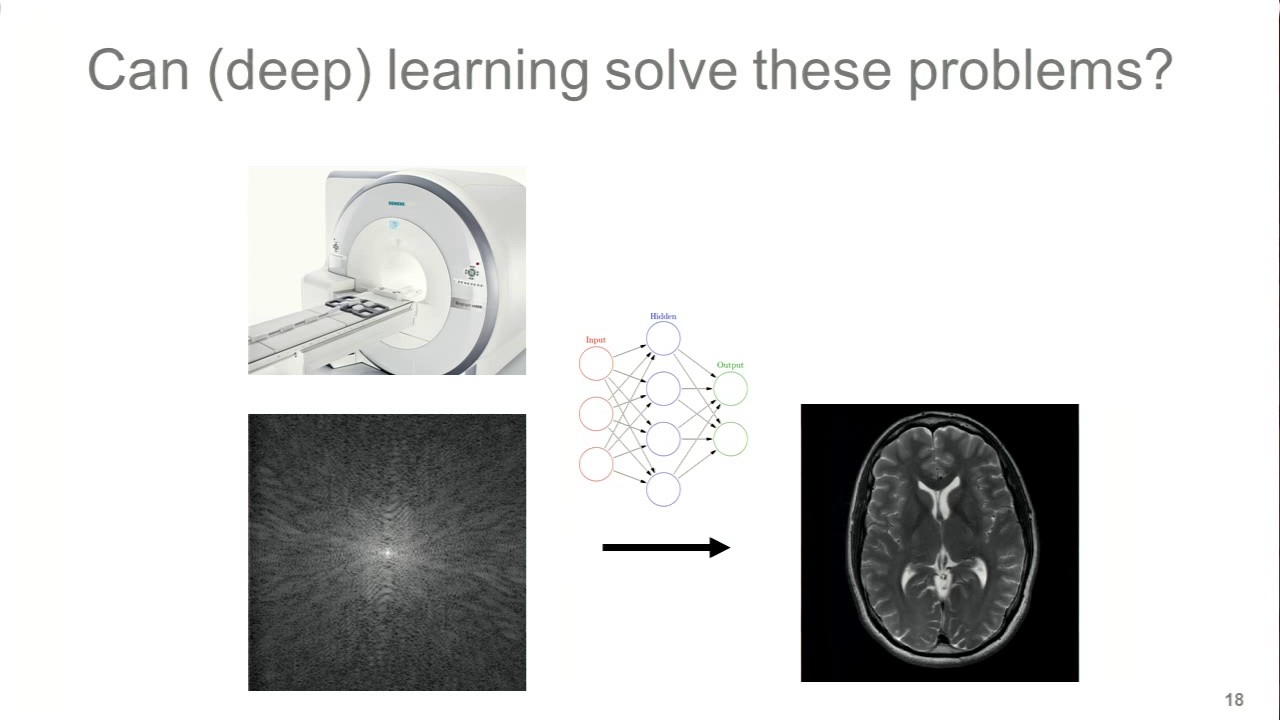 Deep Learning-Based Image Reconstruction for Accelerated Knee Imaging   Florian Knoll, PhD