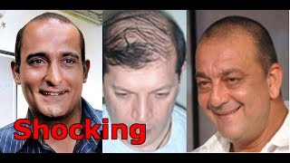 Top 10 Bollywood Celebrities Who Went for Hair Transplant Surgery - OMG!