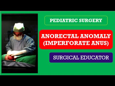 laparoscopic-repair-high-imperforate-anus