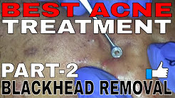 hqdefault - 2 Part Acne Treatment For