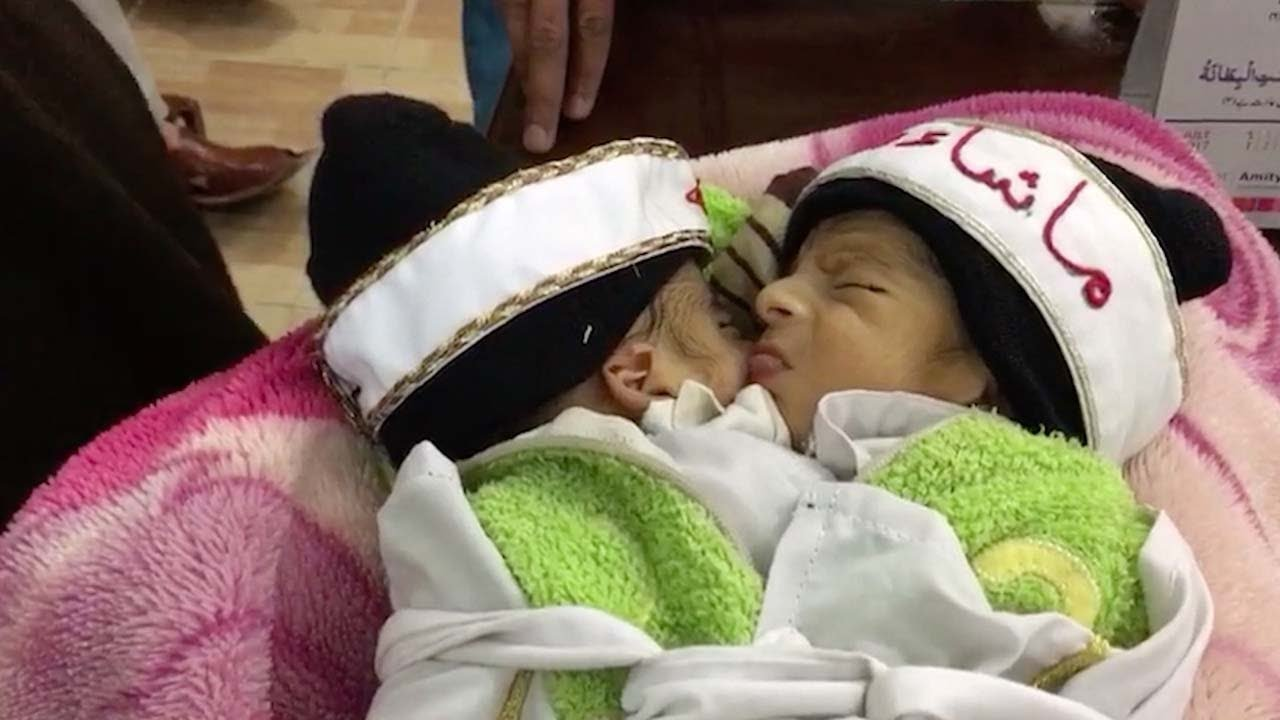 Newborn pakistani twins conjoined at abdomen