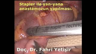 Laparoskopik Kolon Kanseri Ameliyatı