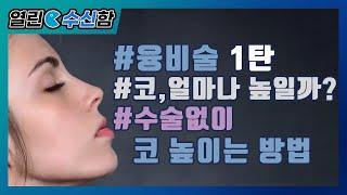 융비술 1탄 [열린 수신함 37편] 레알성형외과 김수신…