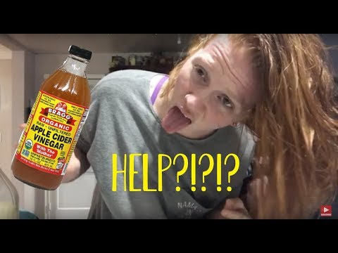 WATCH Me Pour Apple Cider Vinegar ALL over my HEAD!!?! | Eczema & Psoriasis Help