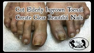 Pedicure Tutorial: Ingrown Toenail Treatment on Elderly and Create Clean Clear Nails