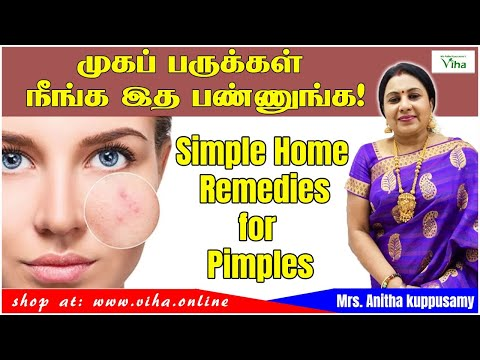 Beauty Tips / Remedies for Pimples /முகப்பரு நீங்க/Anitha Kuppusamy / Kitchen/