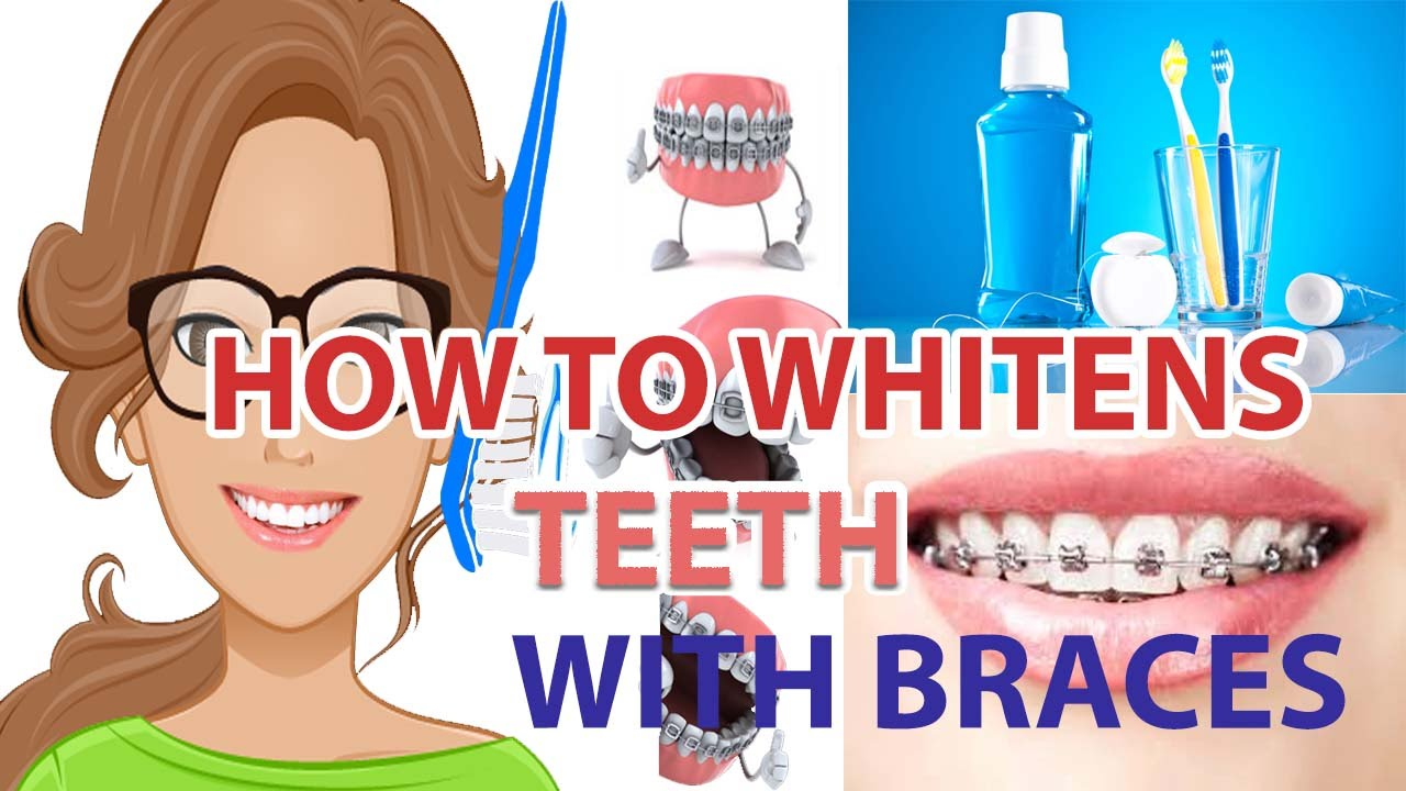 How To Whiten Teeth With Braces How To Whiten Teeth With Braces At