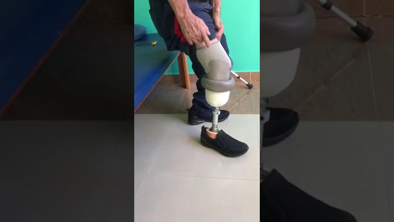 primeira colocação da prótese