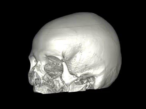 Переломы костей лицевого скелета