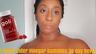 Goli Apple Cider Vinegar Gummies 30 Day Review