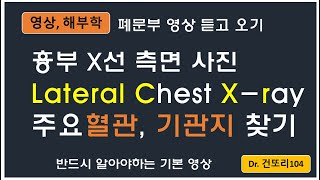 Lateral Chest x-ray(측면 흉부 X선 사…